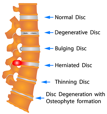 Disc Treatment