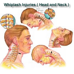 Inverness whiplash Treatment